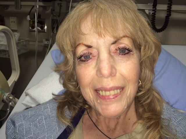 Fundraiser Cancer Recovery for Diane's Rare 1% Cancer & Trauma Surgery